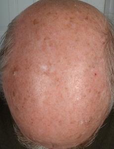 Weißer Hautkrebs Vorstufe